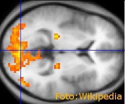 slike-mozganov-kazejo-slabso-povezavo